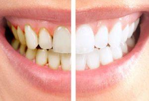 pulizia-dentale-prima-e-dopo